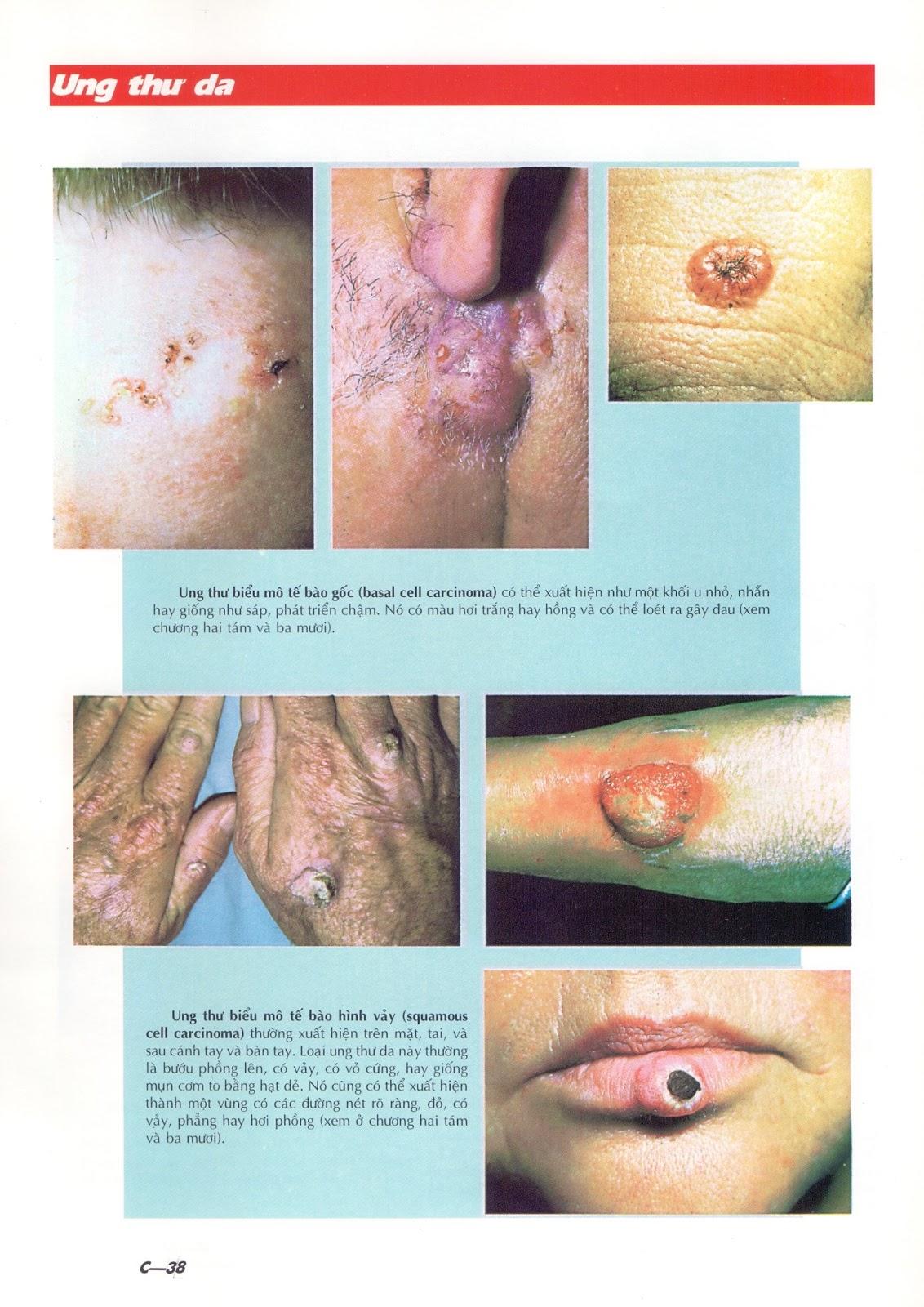 Một số bệnh ung thư da phổ biến qua hình ảnh đời thực