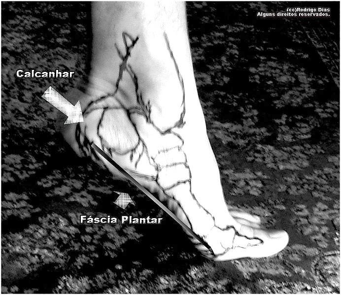 pés chatos causa dor no tornozelo