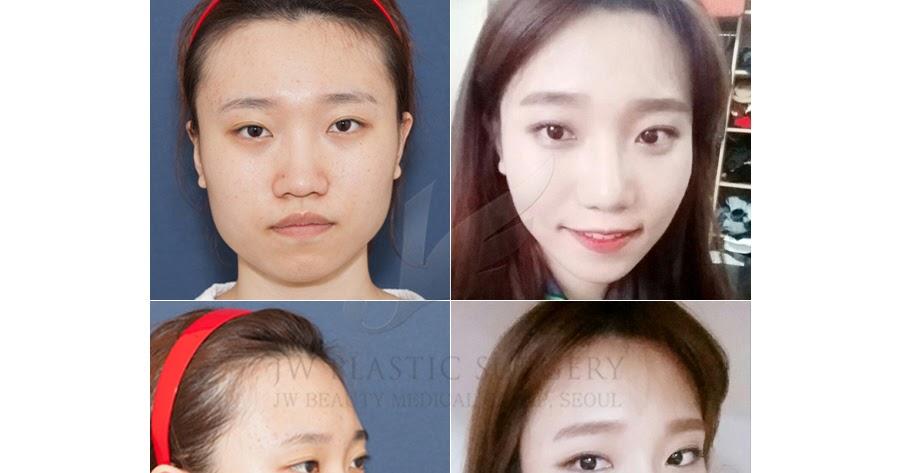 пластическая хирургия фото в симферополе выяснили, как покрасить