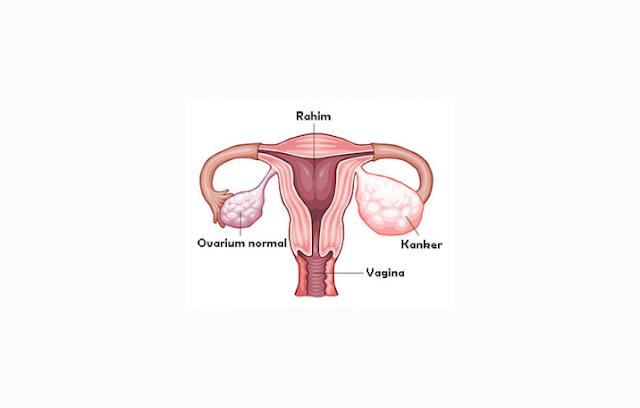 Pengertian, Struktur dan Fungsi Ovarium