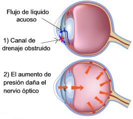 ¿Que es el Glaucoma? ¿Cómo se diagnostica? ¿Presión intraocular normal?