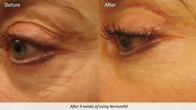 Nerium Ad Results Before Amp After What Works For Under Eye