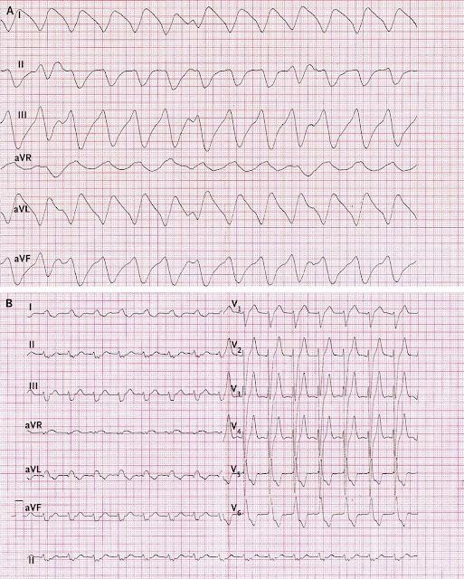 Thay đổi điện tim ở người bệnh tăng kali máu