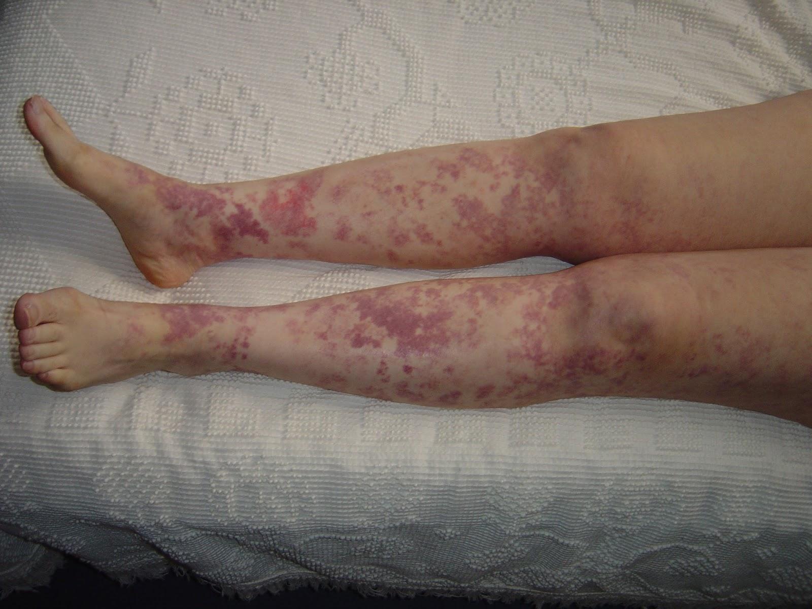 rash legs