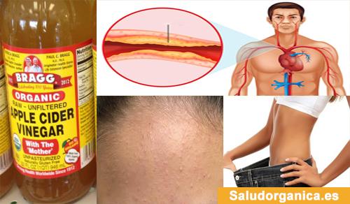acido urico sintomatologia y cuidados determinacion de acido urico en sangre frutas que no se pueden comer con acido urico alto
