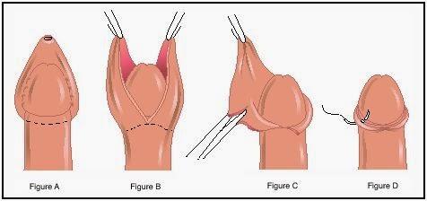 doing a female circumcision vagina