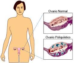 insulina baja de peso