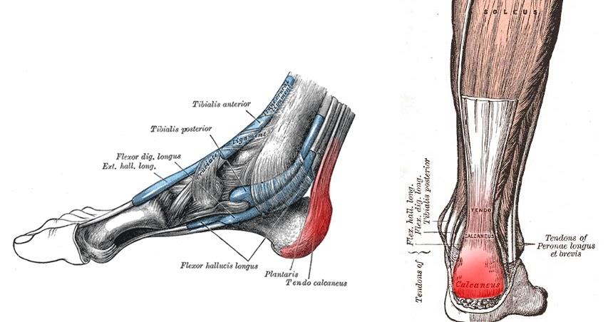 Heels insertion