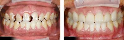 chữa răng ê buốt