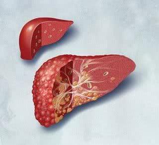 Chás poderosos para tratar a gordura no fígado