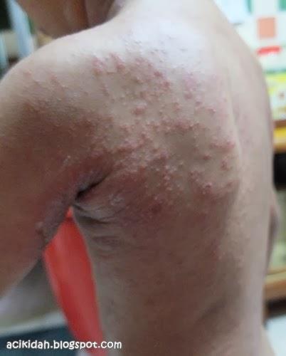 Eczema : di bahagian belakang badan.