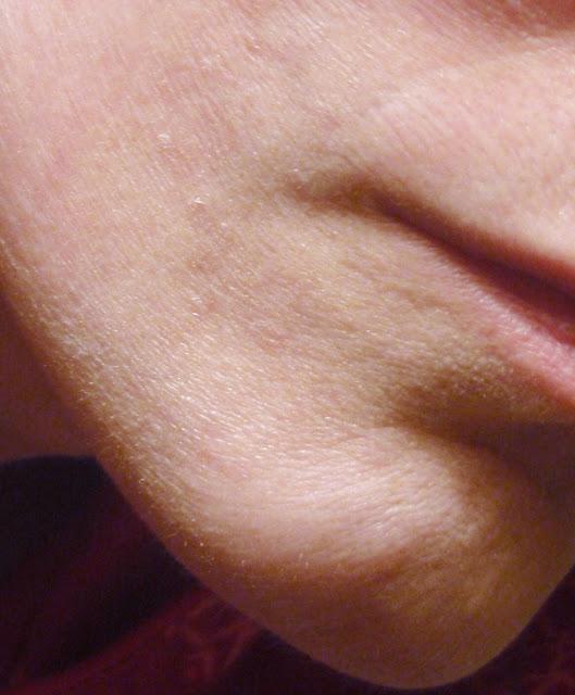 dehydrated skin