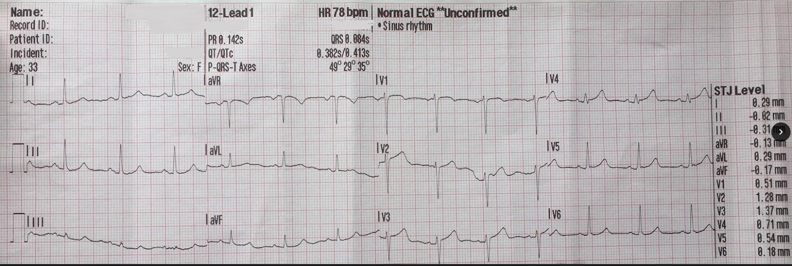 Normal Ecg Pattern Cool Design Ideas