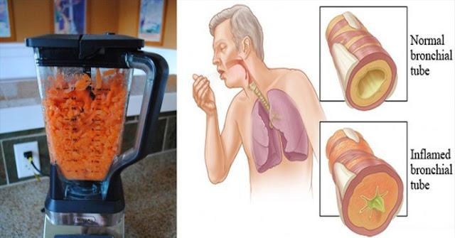 Carottes: La nourriture naturelle pour soigner la toux et le flegme de vos poumons