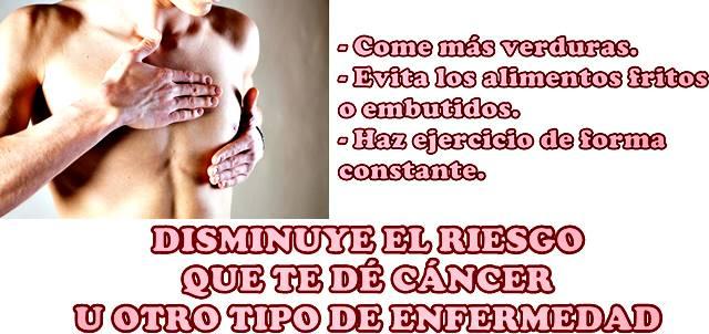 Consejos para reducir el riesgo de desarrollar cáncer de mama en hombres