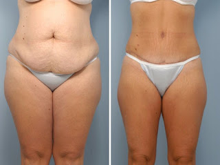 before-after-liposuction-stomach