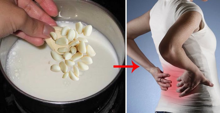 Garlic Milk Is An Excellent Homemade Remedy Against Sciatica And Back Pain