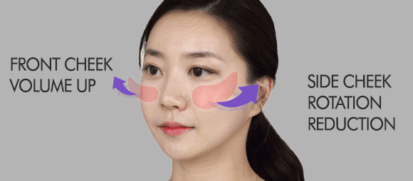 Korean Best Face Contouring, 3D Zygoma Reduction Surgery