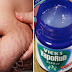 How To Use Vicks VapoRub To Get Rid Of Accumulated Belly Fat And Cellulite, Eliminate Stretch Marks And Have Firmer Skin!