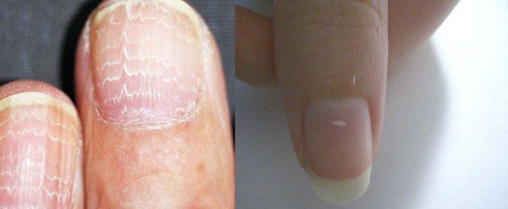 أسباب و علاج البقع البيضاء التى تتكون فى الأظافر