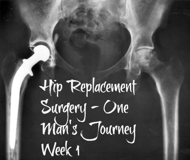 Hip-replacement-surgery-one-mans-journey-week-1-text-over-xray-of-a-hip-protheses-artificial-hip-joint