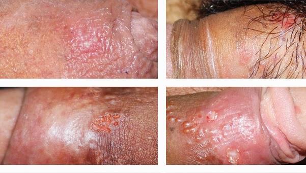 conocer gente con herpes