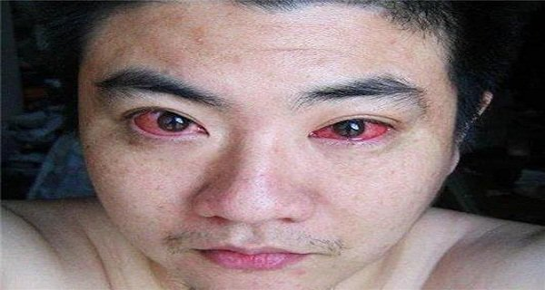 câncer nos olhos por usar celular