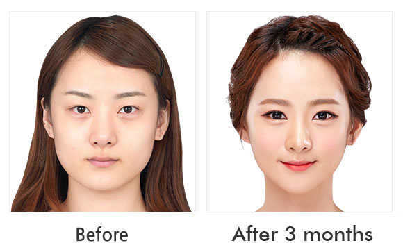 짱이뻐! - Korean Face Contouring - Cheekbone Reduction