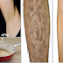 In 2 minutes - Remove Unwanted Hair Permanently | No Shave No Wax