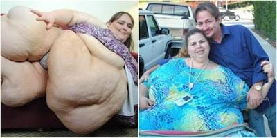 Lima Cara Diet Paling Ekstrim Yang Dilakukan Wanita di Dunia