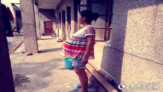 إمرأة صينية تحمل جنينها 17 شهرًا