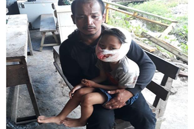 Ayah dan Ibunya Dibantai, Bocah 6 Tahun Ini Juga Dianiaya Tentara OPM