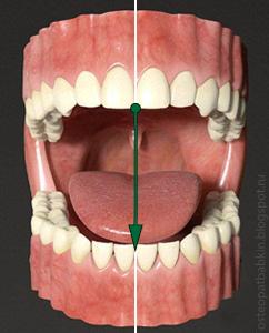 физиологичное открытие рта: нижняя челюсть опускается по средней линии
