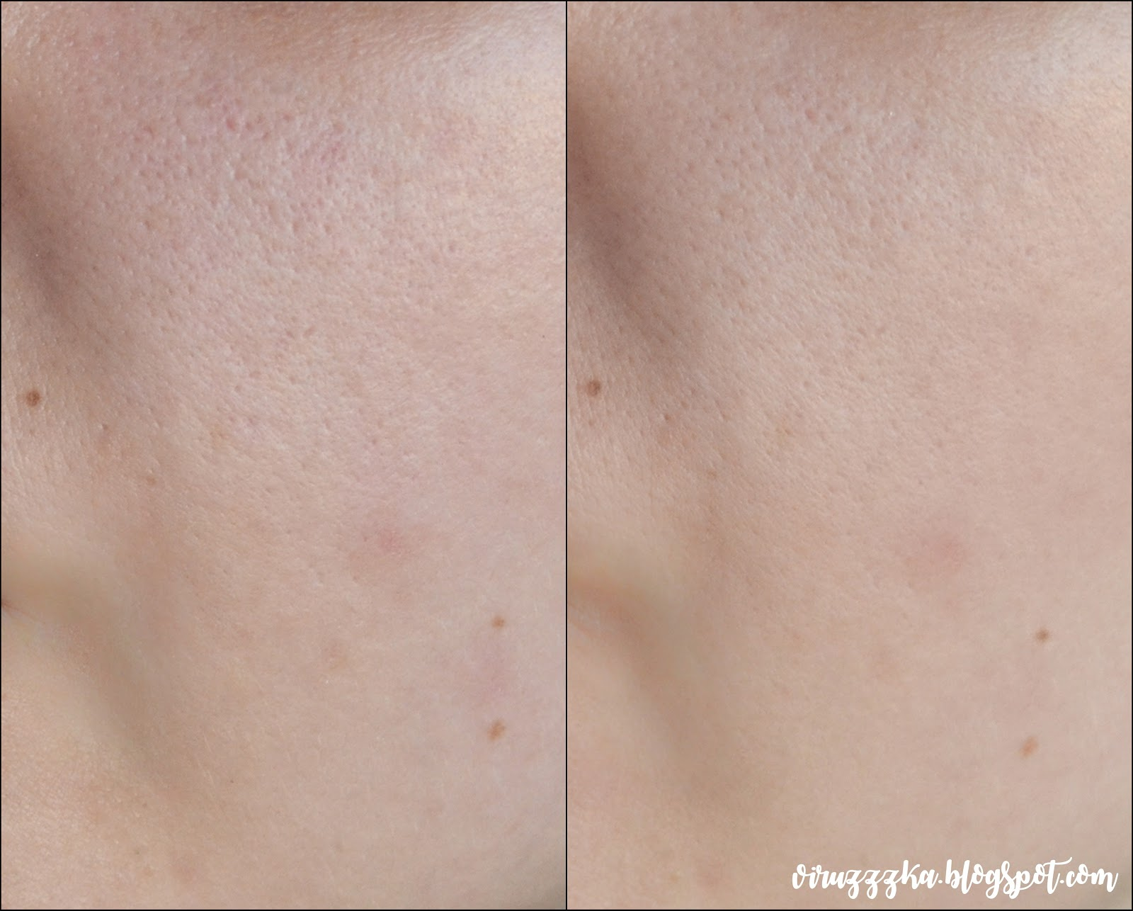Glamglow Youthmud Tinglexfoliate Treatment Review before after