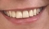Erika Walder Dicas De Como Clarear Os Dentes Com Violeta Genciana Top