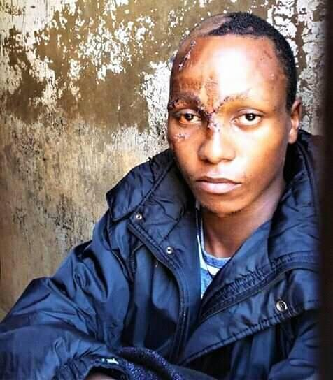 kinuthia%2Bpic - Here's a clear PHOTO of NAFTALI KINUTHIA in his cell and the injuries he sustained from mob justice after killing IVY