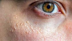 Millium na pele: O que é e como tratar.