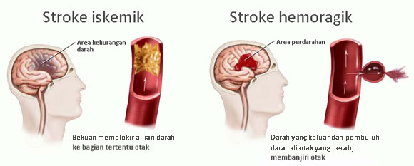 Stroke iskemik dan stroke hemoragik