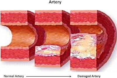 pared arterial rígida y con ateroesclerosis