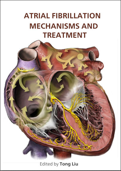 Atrial Fibrillation-Mechanisms and Treatment PDF (2013)