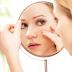 मुंहासे की समस्या दूर करने के आयर्वेदिक उपचार - Pimple / ACNE Disease solution