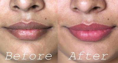 Comment éclaircir la peau foncée autour de la bouche naturellement