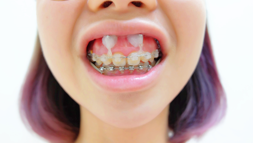 My braces story 3 second and final stage put on 4 screws im so happy that no more ulcer now i just have to use a little wax to cover my screw and its fine now i can eat smile and laugh solutioingenieria Choice Image