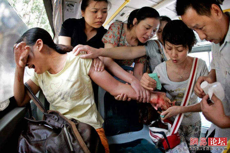 PUBLIC BUS PASSENGERS TRY TO RESCUE A WOMAN WHO TRIED TO COMMIT SUICIDE BY SLITTING HER WRIST WITH A FRUIT KNIFE - 29 Breathtaking Photographs of The Human Race