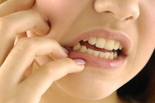 Penyakit Gigi dan Mulut Hilang dengan Melia Propolis