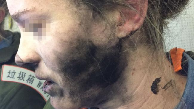 A Lady's Headphone Explodes During Flight Leaving The Victim With Burns