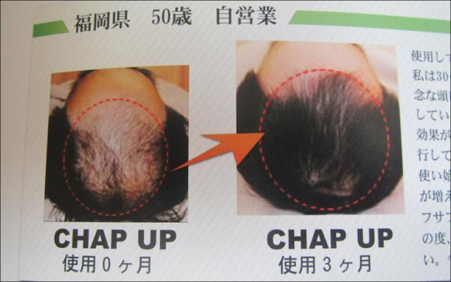 「チャップアップ」実践4ヵ月!育毛効果を評価してみた!?