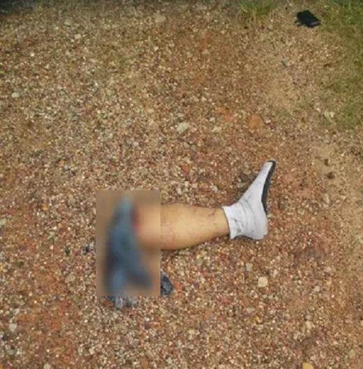 Gambar Kemalangan Putus Kaki