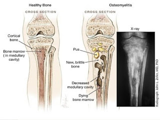 Osteomyelitis definition