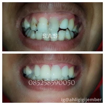 2106fe8cadf gigi depan keropos - gigi depan hitam - biaya tambal gigi depan yang hitam  - hasil tambal gigi depan - cara mengatasi gigi keropos bagian depan
